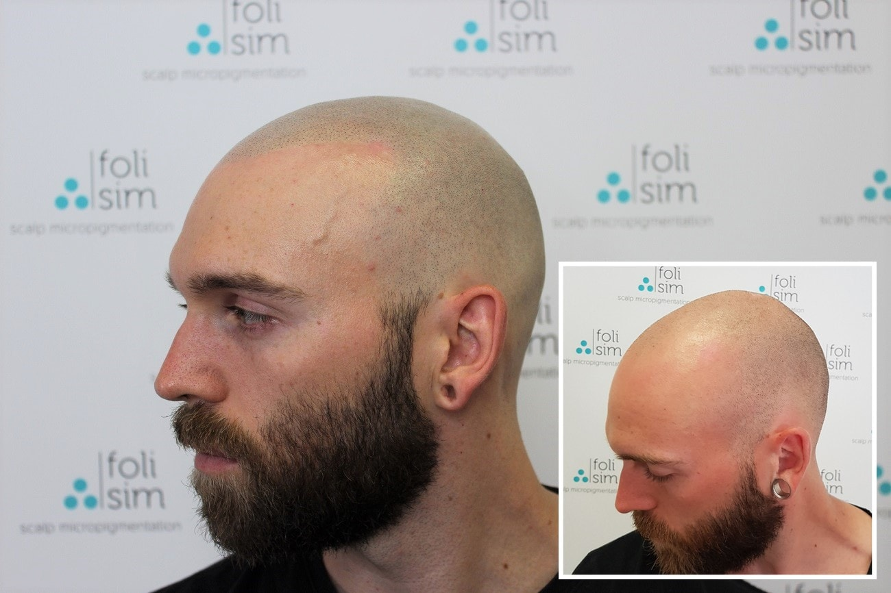 Know how important scalp micropigmentation training is to apply it now